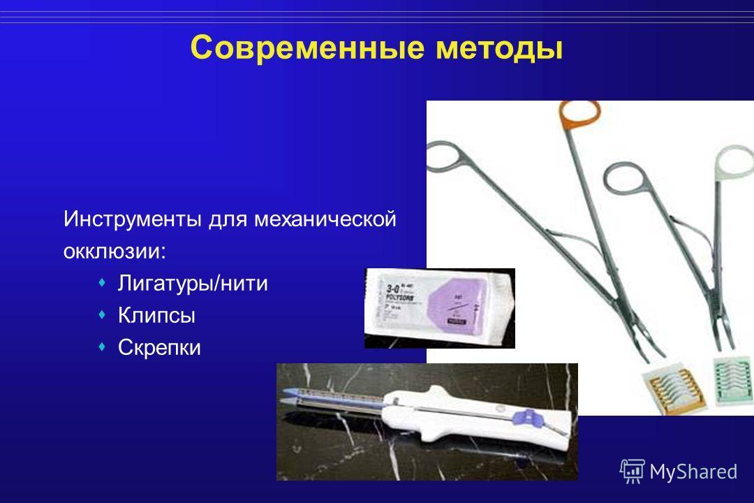 Современные методы Инструменты для механической окклюзии: Лигатуры/нити Клипсы Скрепки