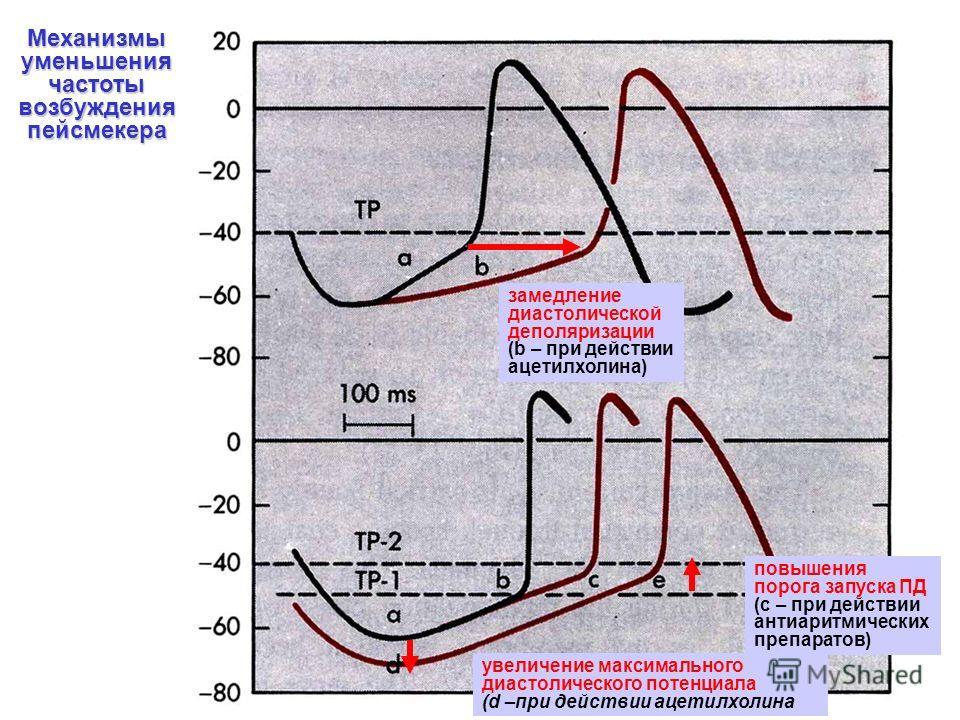 повышения порога запуска ПД (с – при действии антиаритмических препаратов) Механизмы уменьшения частоты возбуждения пейсмекера увеличение максимального диастолического потенциала (d –при действии ацетилхолина замедление диастолической деполяризации (