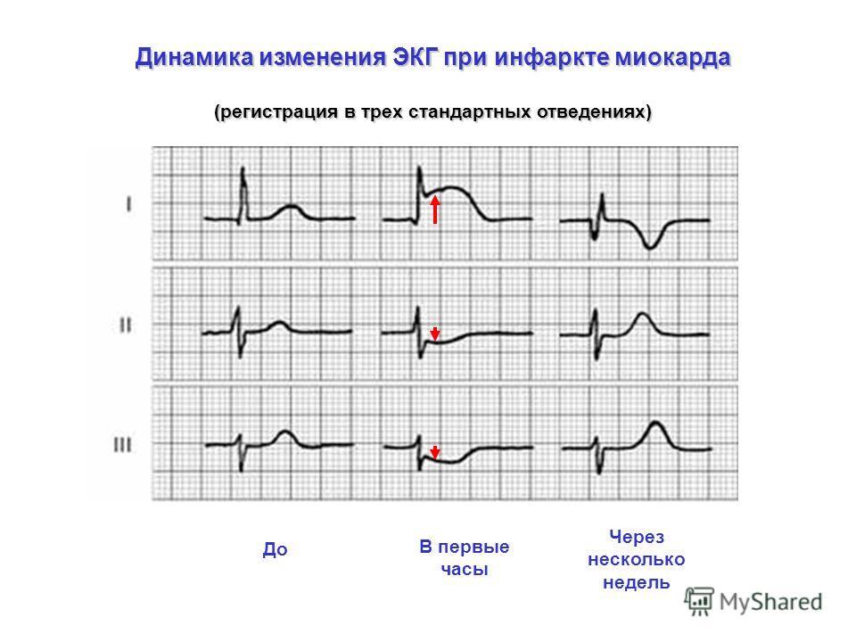 Динамика изменения ЭКГ при инфаркте миокарда (регистрация в трех стандартных отведениях) До В первые часы Через несколько недель