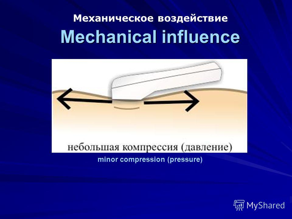 Mechanical influence Механическое воздействие Mechanical influence minor compression (pressure)