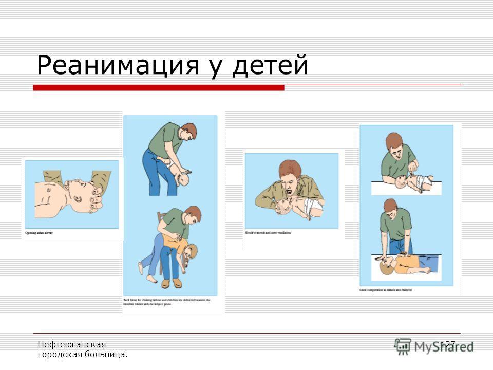 Нефтеюганская городская больница. 127 Реанимация у детей