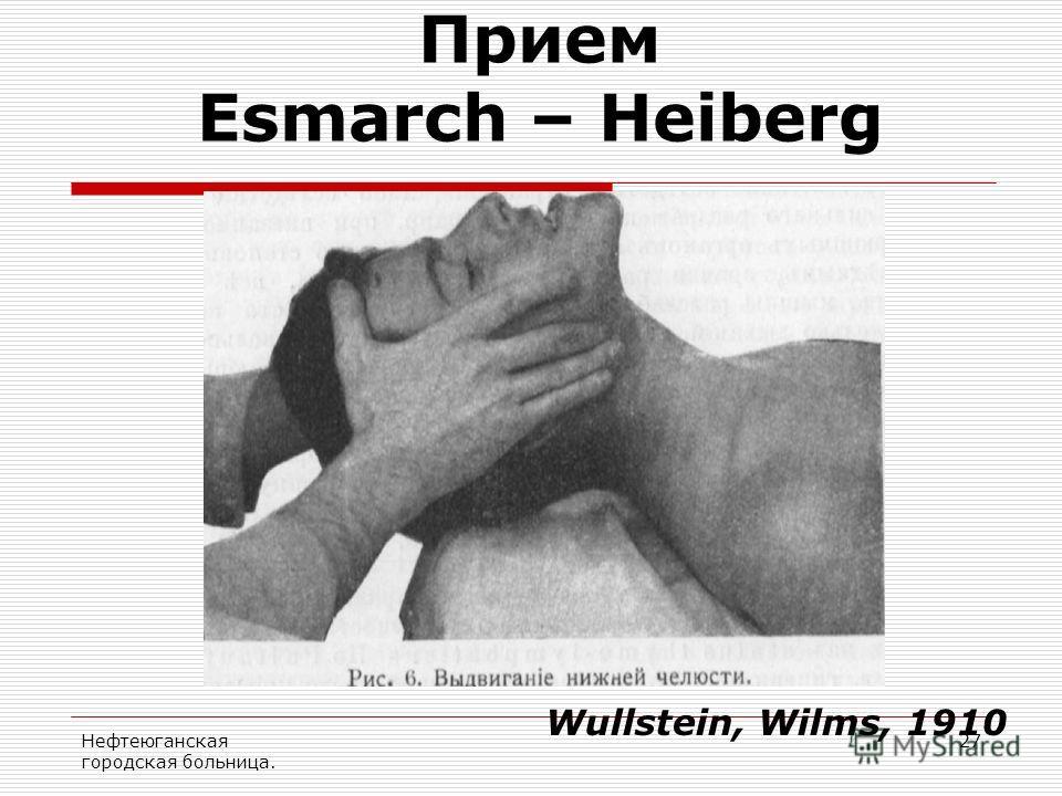 Нефтеюганская городская больница. 27 Прием Esmarch – Heiberg Wullstein, Wilms, 1910