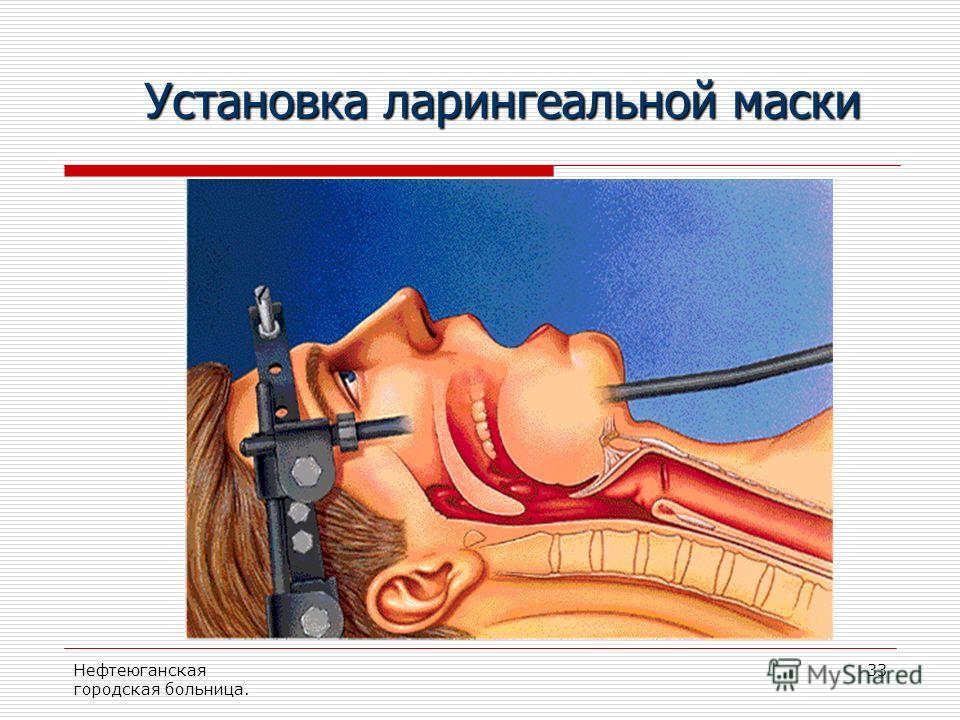 Нефтеюганская городская больница. 33 Установка ларингеальной маски