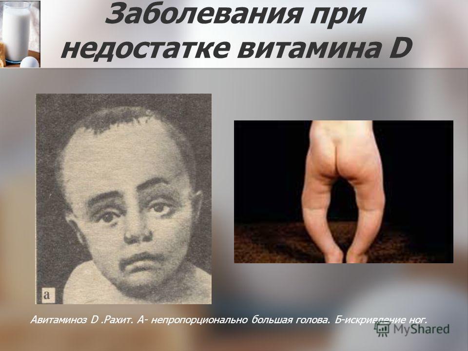 Заболевания при недостатке витамина D Авитаминоз D.Рахит. А- непропорционально большая голова. Б-искривление ног.