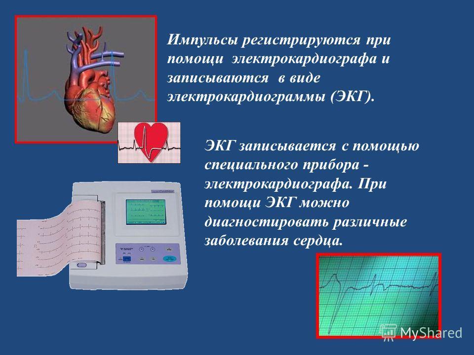 Импульсы регистрируются при помощи электрокардиографа и записываются в виде электрокардиограммы (ЭКГ). ЭКГ записывается с помощью специального прибора - электрокардиографа. При помощи ЭКГ можно диагностировать различные заболевания сердца.
