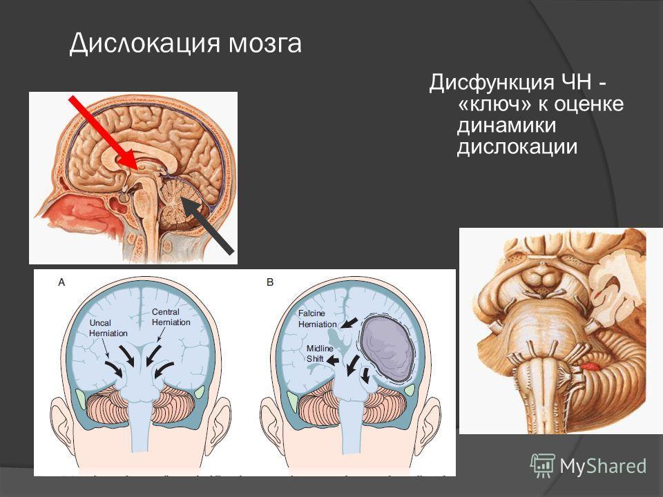 Дислокация мозга Дисфункция ЧН - «ключ» к оценке динамики дислокации