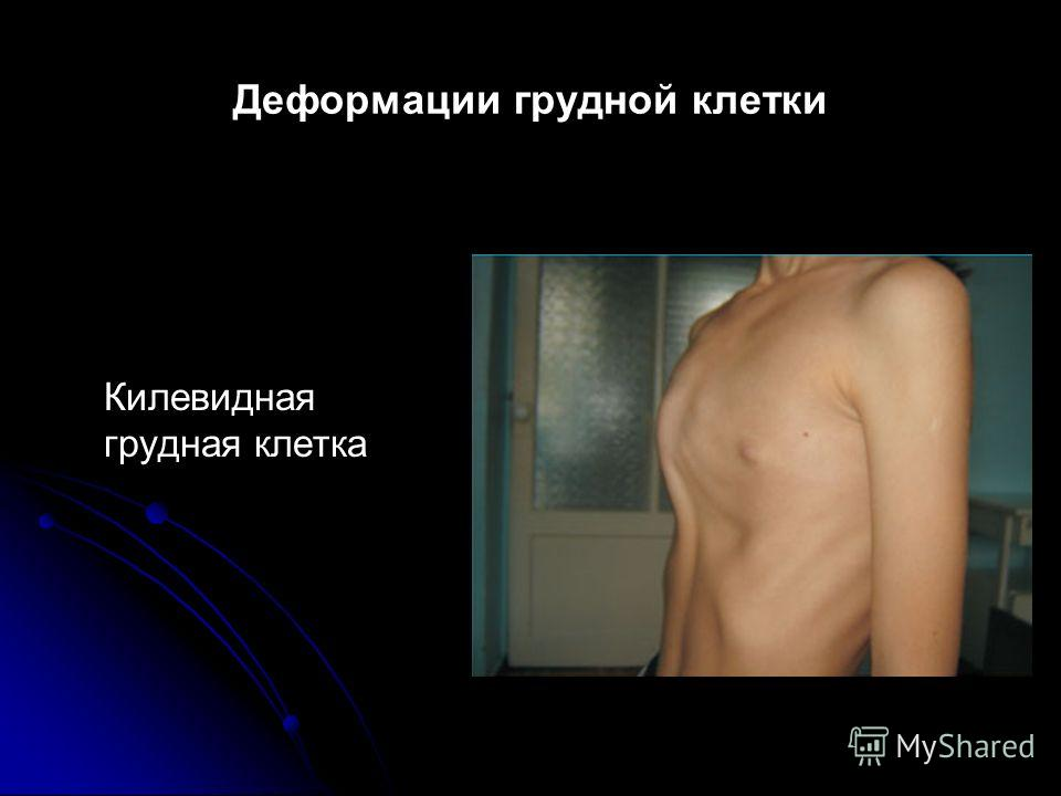 Деформации грудной клетки Килевидная грудная клетка