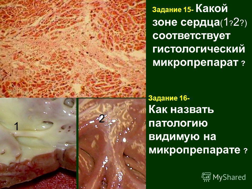 Задание 15- Какой зоне сердца ( 1 ? 2 ?) соответствует гистологический микропрепарат ? 1 2 Задание 16- Как назвать патологию видимую на микропрепарате ?