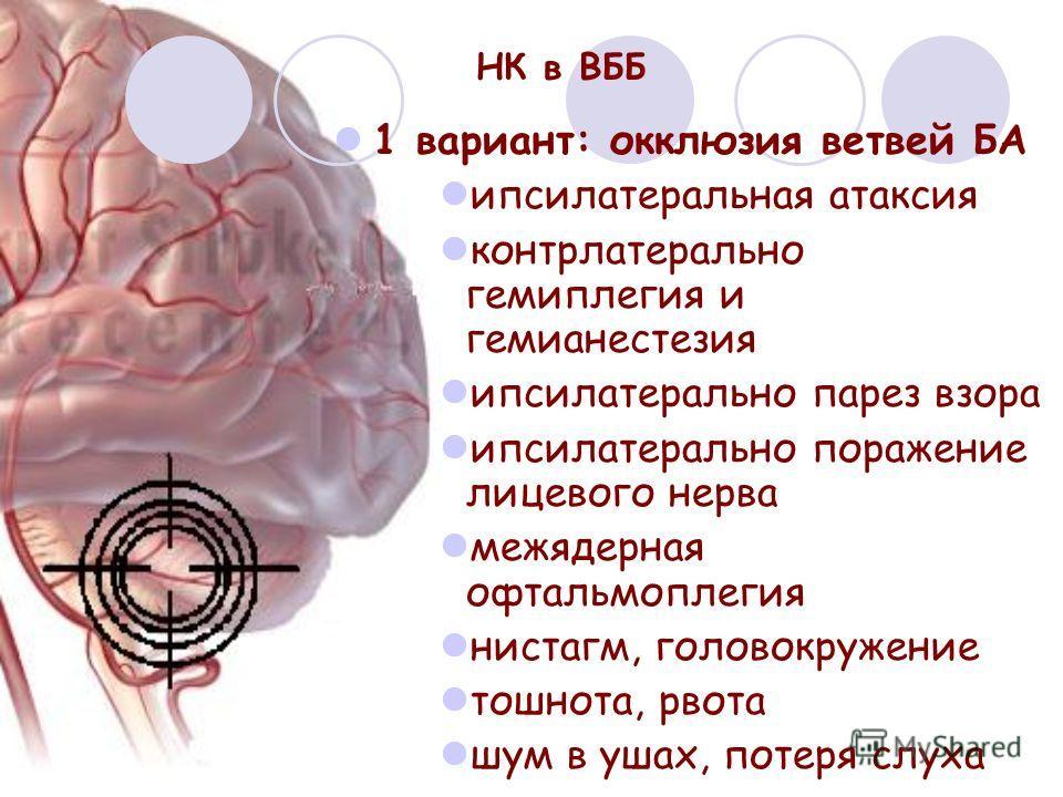 НК в ВББ 1 вариант: окклюзия ветвей БА ипсилатеральная атаксия контрлатерально гемиплегия и гемианестезия ипсилатерально парез взора ипсилатерально поражение лицевого нерва межядерная офтальмоплегия нистагм, головокружение тошнота, рвота шум в ушах,