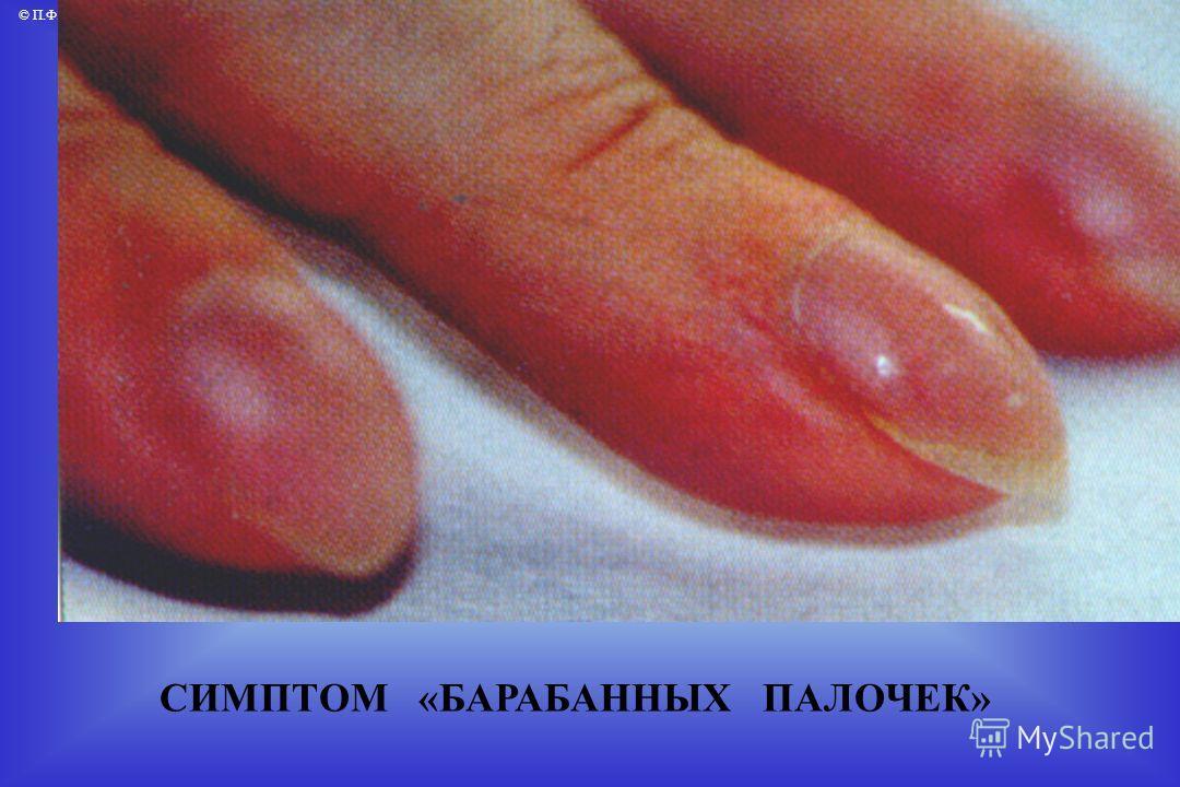 © П.Ф.Литвицкий, 2004 © ГЭОТАР-МЕД, 2004 СИМПТОМ «БАРАБАННЫХ ПАЛОЧЕК»