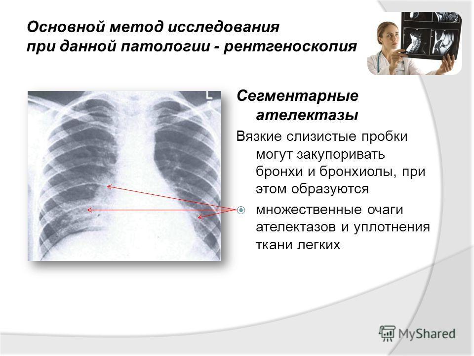 Основной метод исследования при данной патологии - рентгеноскопия Сегментарные ателектазы Вязкие слизистые пробки могут закупоривать бронхи и бронхиолы, при этом образуются множественные очаги ателектазов и уплотнения ткани легких
