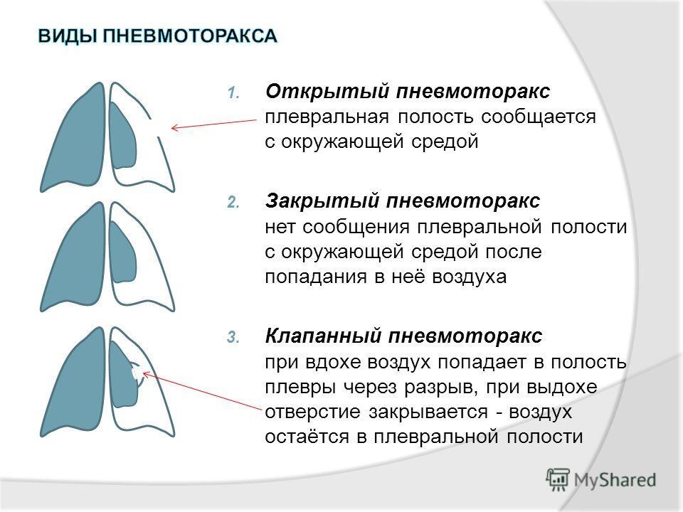 1. Открытый пневмоторакс плевральная полость сообщается с окружающей средой 2. Закрытый пневмоторакс нет сообщения плевральной полости с окружающей средой после попадания в неё воздуха 3. Клапанный пневмоторакс при вдохе воздух попадает в полость пле