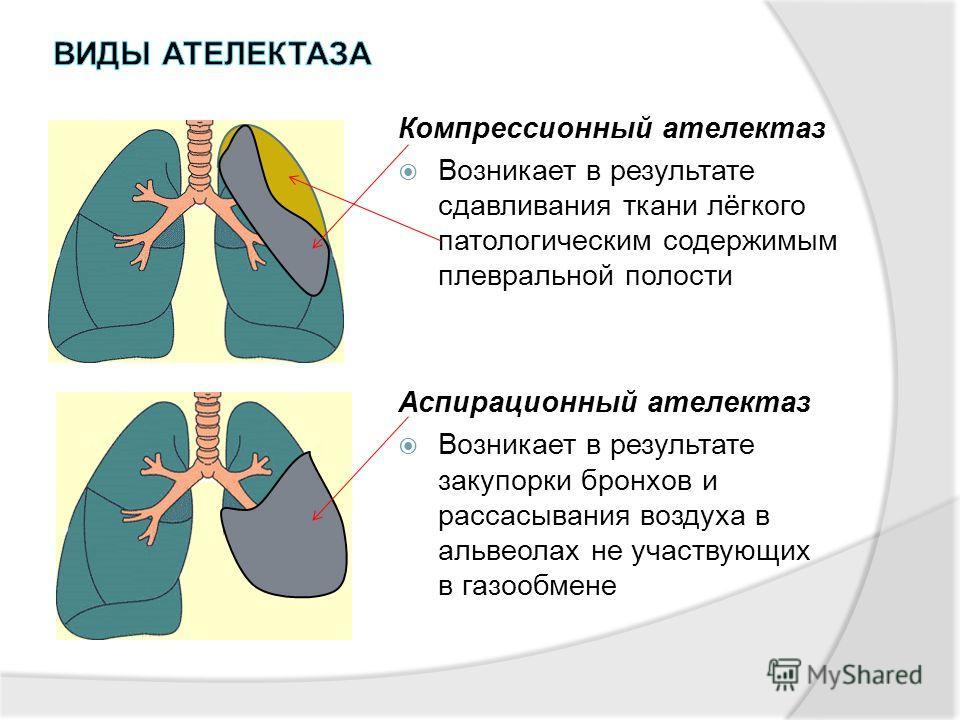 Компрессионный ателектаз Возникает в результате сдавливания ткани лёгкого патологическим содержимым плевральной полости Аспирационный ателектаз Возникает в результате закупорки бронхов и рассасывания воздуха в альвеолах не участвующих в газообмене