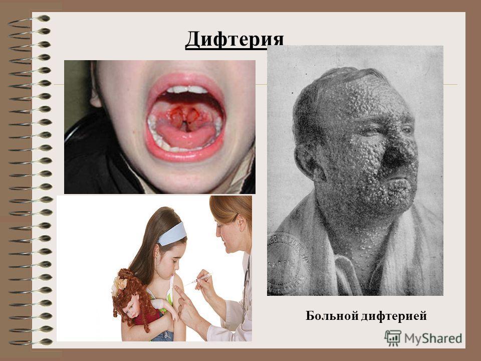Дифтерия Больной дифтерией