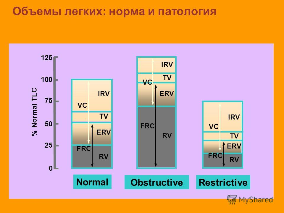 Объемы легких: норма и патология Normal RV ERV TV IRV FRC VC Restrictive RV ERV TV IRV FRC VC Obstructive RV ERV TV IRV FRC VC 125 100 75 50 25 0 % Normal TLC