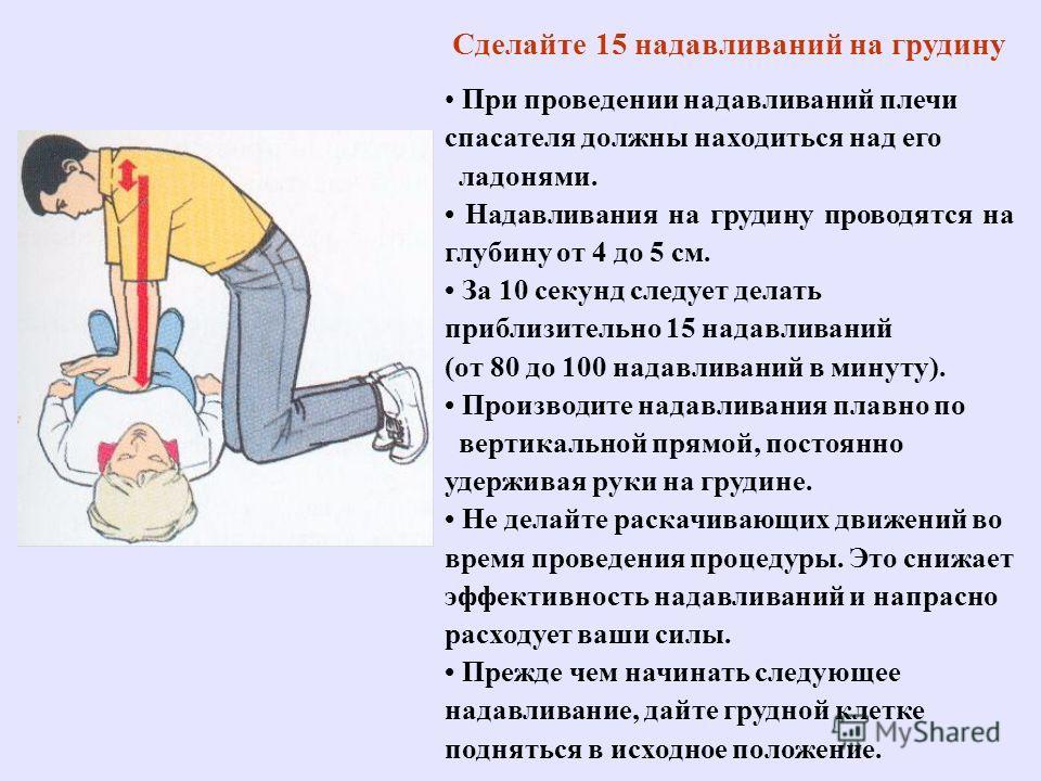 Сделайте 15 надавливаний на грудину При проведении надавливаний плечи спасателя должны находиться над его ладонями. Надавливания на грудину проводятся на глубину от 4 до 5 см. За 10 секунд следует делать приблизительно 15 надавливаний (от 80 до 100 н
