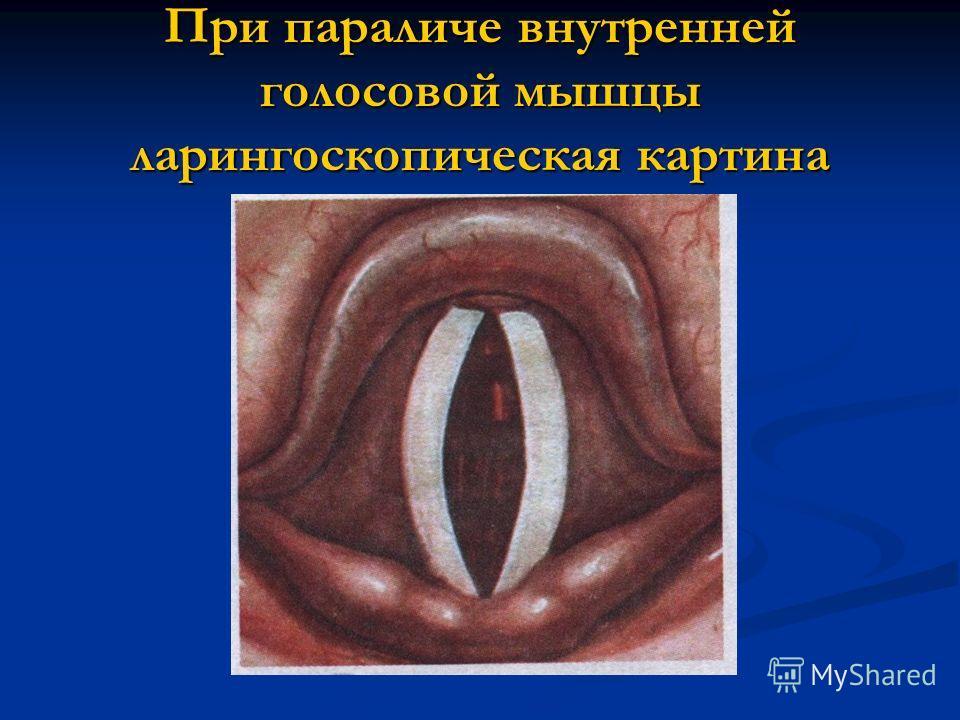 При параличе внутренней голосовой мышцы ларингоскопическая картина