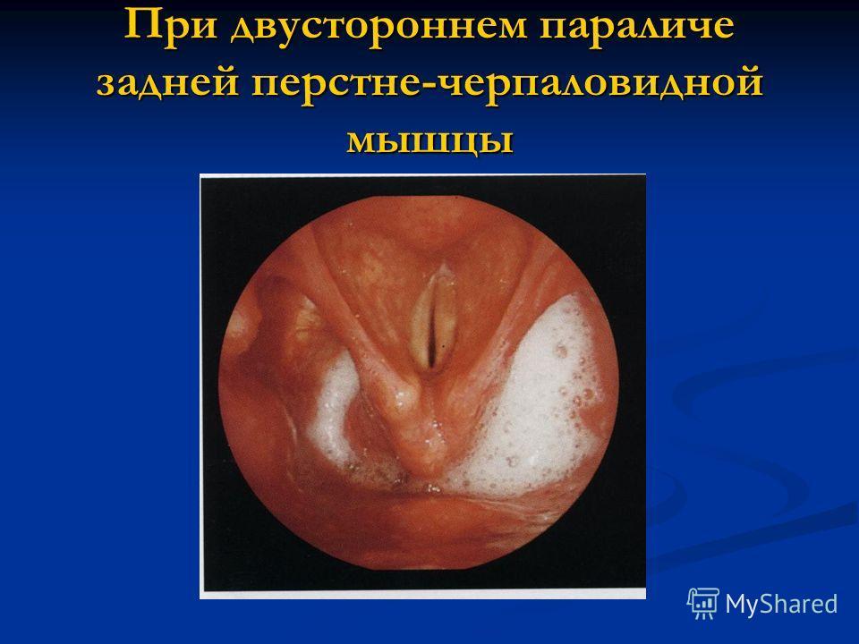 При двустороннем параличе задней перстне-черпаловидной мышцы