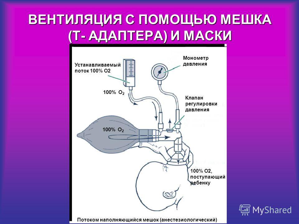 Устанавливаемый поток 100% О2 100% O 2 Потоком наполняющийся мешок (анестезиологический) Монометр давления Клапан регулировки давления 100% О2, поступающий ребенку ВЕНТИЛЯЦИЯ С ПОМОЩЬЮ МЕШКА (Т- АДАПТЕРА) И МАСКИ