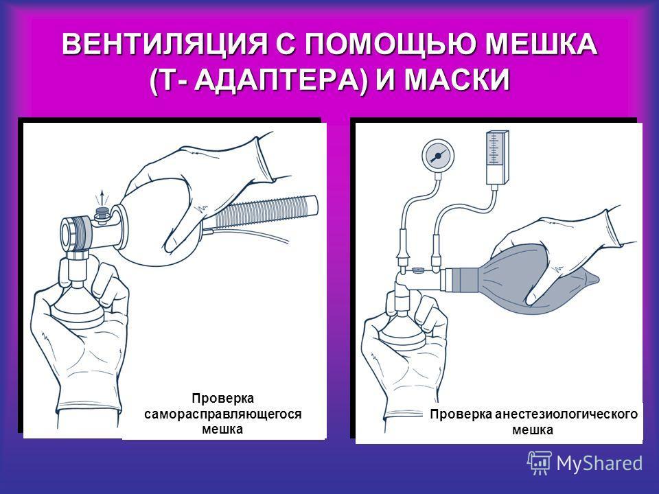 Проверка анестезиологического мешка Проверка саморасправляющегося мешка ВЕНТИЛЯЦИЯ С ПОМОЩЬЮ МЕШКА (Т- АДАПТЕРА) И МАСКИ