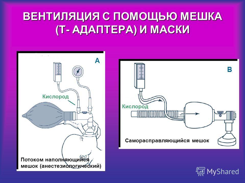 ВЕНТИЛЯЦИЯ С ПОМОЩЬЮ МЕШКА (Т- АДАПТЕРА) И МАСКИ A Потоком наполняющийся мешок (анестезиологический) Кислород Саморасправляющийся мешок B