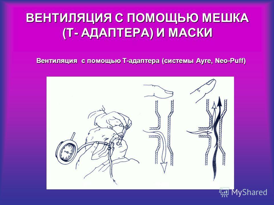 ВЕНТИЛЯЦИЯ С ПОМОЩЬЮ МЕШКА (Т- АДАПТЕРА) И МАСКИ Вентиляция с помощью Т-адаптера (системы Аyre, Neo-Puff)