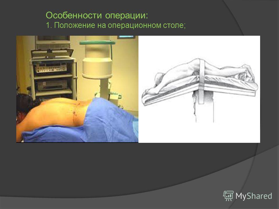 Особенности операции: 1. Положение на операционном столе;