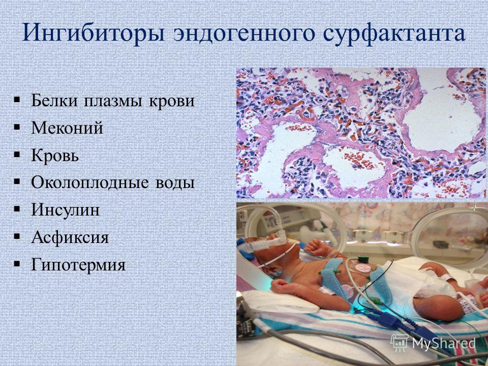 Ингибиторы эндогенного сурфактанта Белки плазмы крови Меконий Кровь Околоплодные воды Инсулин Асфиксия Гипотермия