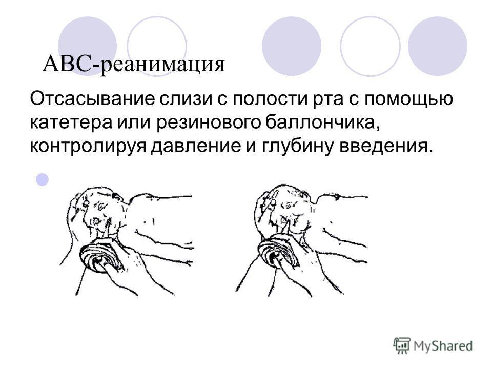 Отсасывание слизи с полости рта с помощью катетера или резинового баллончика, контролируя давление и глубину введения. ABC-реанимация