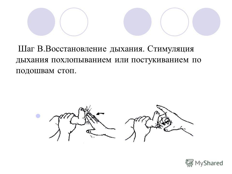 Шаг В.Восстановление дыхания. Стимуляция дыхания похлопыванием или постукиванием по подошвам стоп.