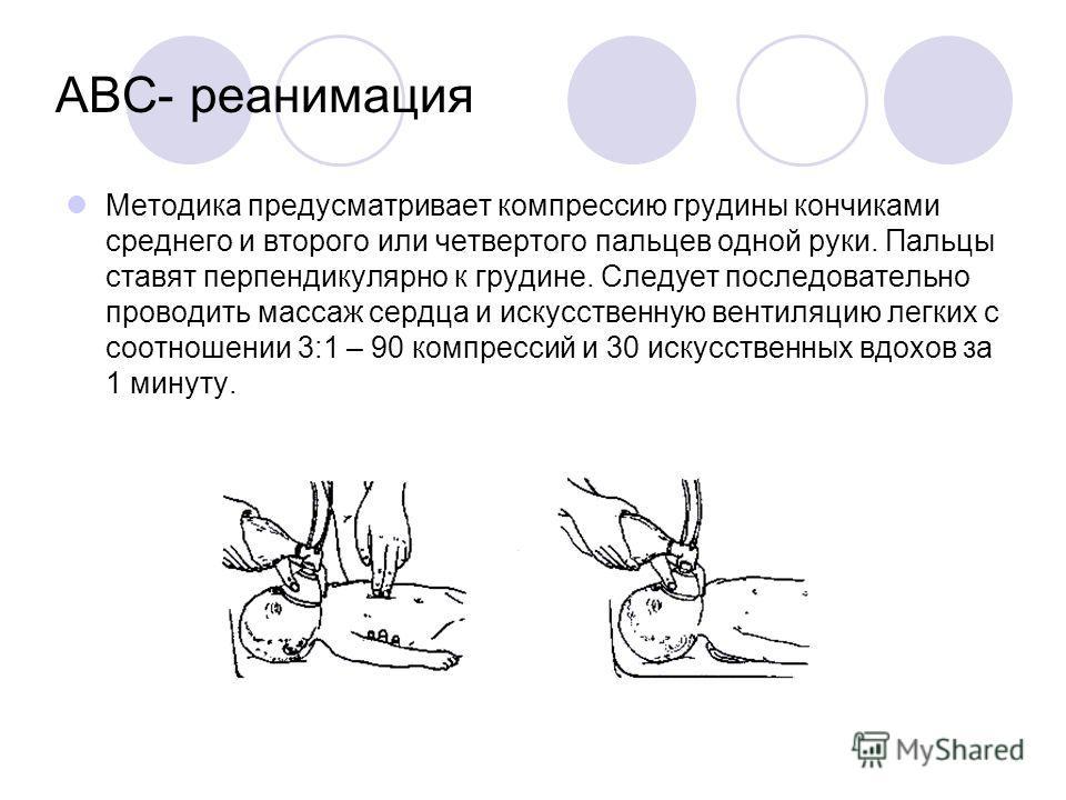 ABC- реанимация Методика предусматривает компрессию грудины кончиками среднего и второго или четвертого пальцев одной руки. Пальцы ставят перпендикулярно к грудине. Следует последовательно проводить массаж сердца и искусственную вентиляцию легких с с