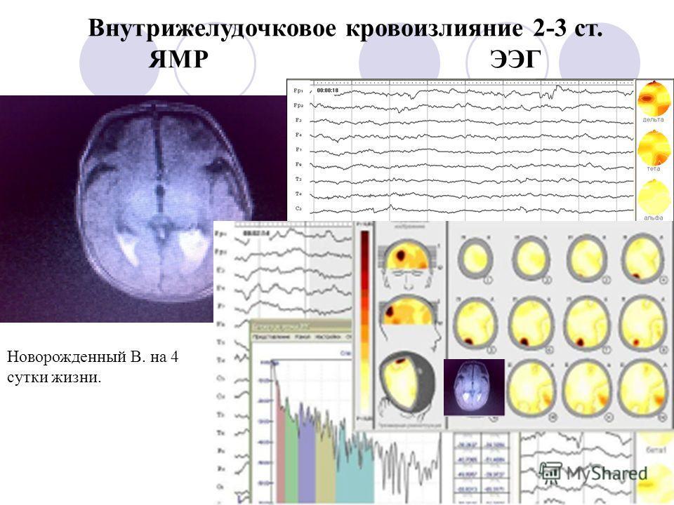 Внутрижелудочковое кровоизлияние 2-3 ст. ЯМР ЭЭГ Новорожденный В. на 4 сутки жизни.