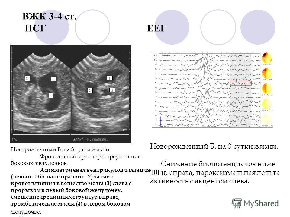 ВЖК 3-4 ст. НСГ ЕЕГ 2 1 3 4 1 2 Новорожденный Б. на 3 сутки жизни. Фронтальный срез через треугольник боковых желудочков. Асимметричная вентрикулодилятация (левый–1 больше правого – 2) за счет кровоизлияния в вещество мозга (3) слева с прорывом в лев