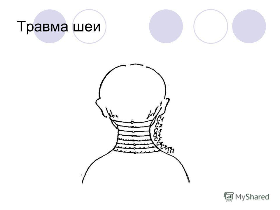 Травма шеи