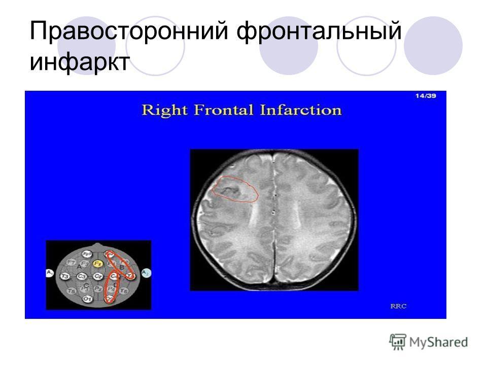 Правосторонний фронтальный инфаркт