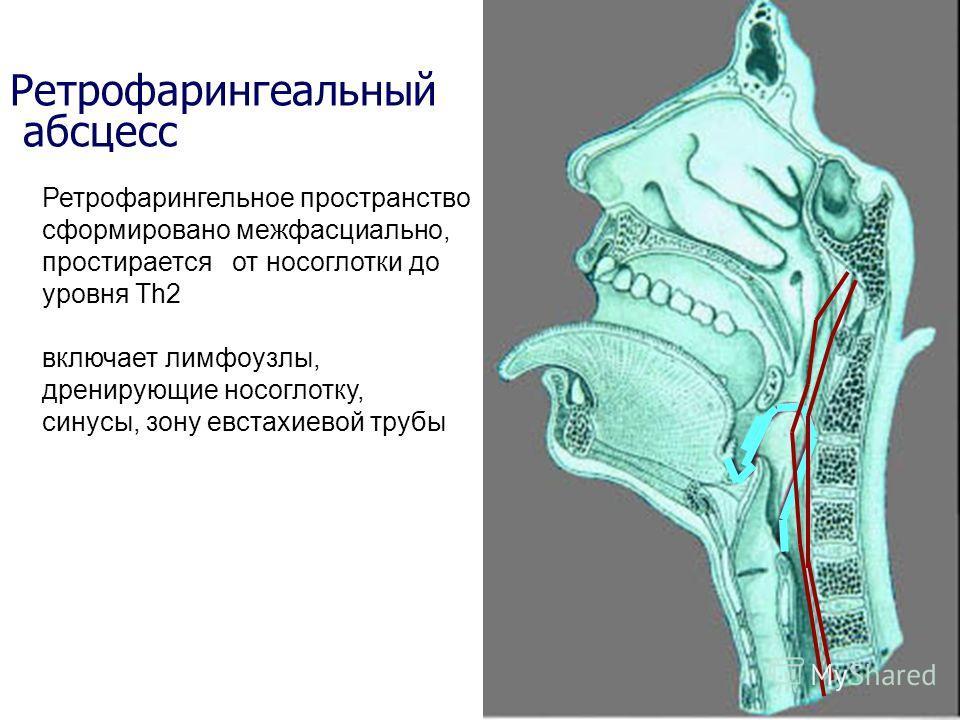 Ретрофарингеальный абсцесс Ретрофарингельное пространство сформировано межфасциально, простирается от носоглотки до уровня Тh2 включает лимфоузлы, дренирующие носоглотку, синусы, зону евстахиевой трубы