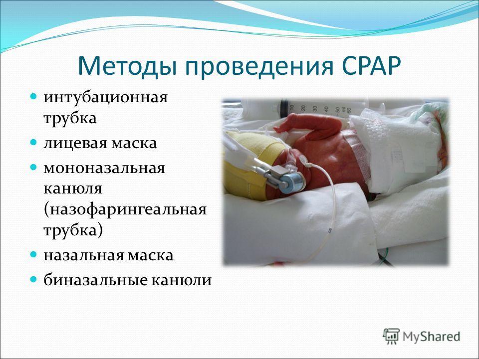 Методы проведения CPAP интубационная трубка лицевая маска мононазальная канюля (назофарингеальная трубка) назальная маска биназальные канюли