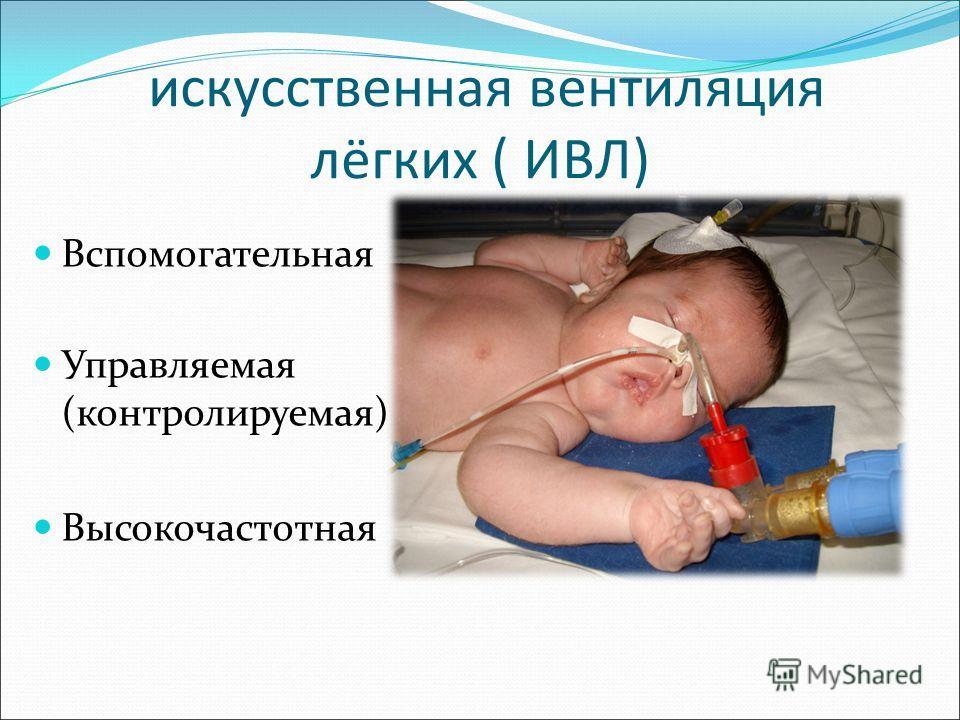 искусственная вентиляция лёгких ( ИВЛ) Вспомогательная Управляемая (контролируемая) Высокочастотная