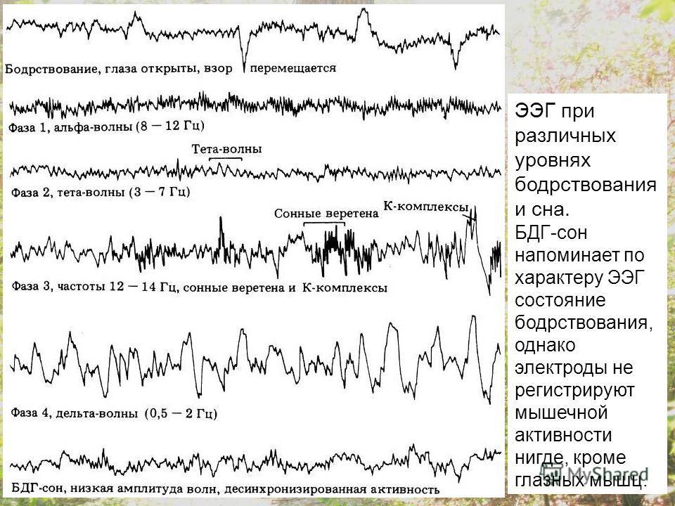 ЭЭГ при различных уровнях бодрствования и сна. БДГ-сон напоминает по характеру ЭЭГ состояние бодрствования, однако электроды не регистрируют мышечной активности нигде, кроме глазных мышц.