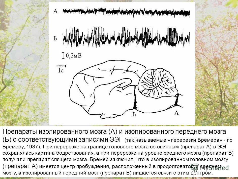 Препараты изолированного мозга (А) и изолированного переднего мозга (Б) с соответствующими записями ЭЭГ (так называемые «перерезки Бремера» - по Бремеру, 1937). При перерезке на границе головного мозга со спинным (препарат А) в ЭЭГ сохранялась картин