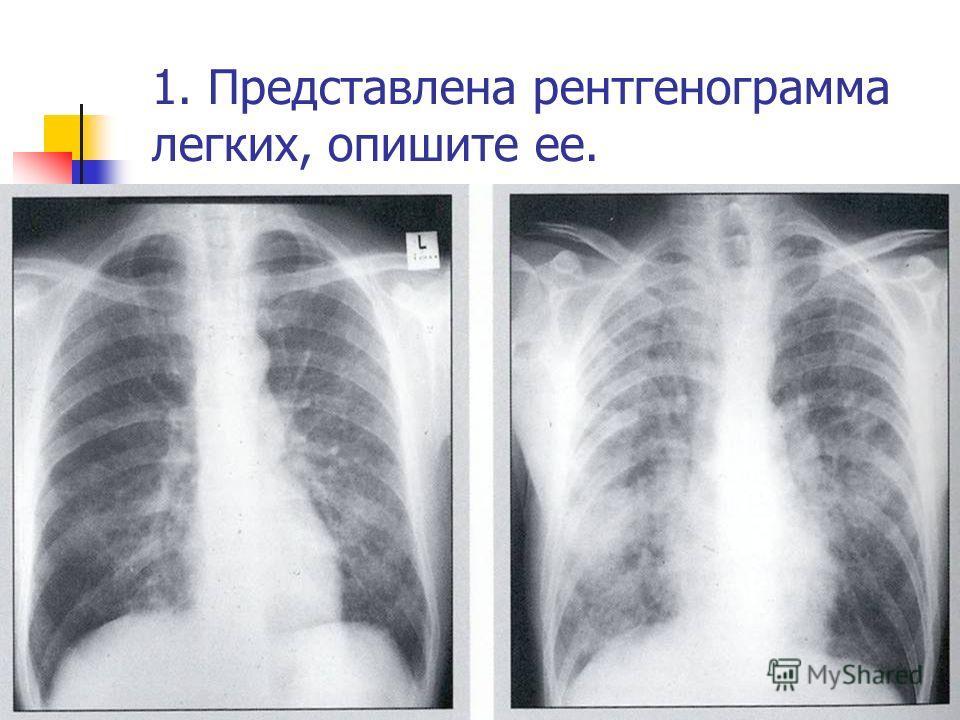 1. Представлена рентгенограмма легких, опишите ее.