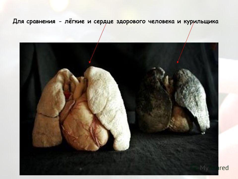 Для сравнения - лёгкие и сердце здорового человека и курильщика