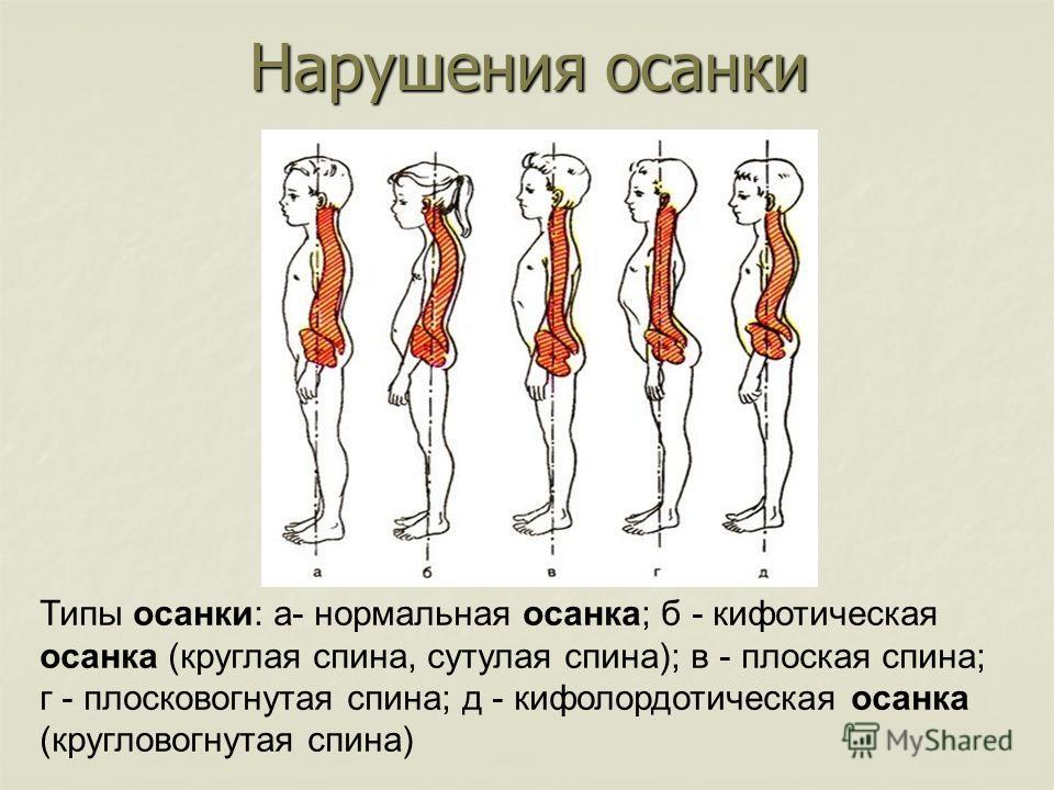 Типы осанки: а- нормальная осанка; б - кифотическая осанка (круглая спина, сутулая спина); в - плоская спина; г - плосковогнутая спина; д - кифолордотическая осанка (кругловогнутая спина) Нарушения осанки