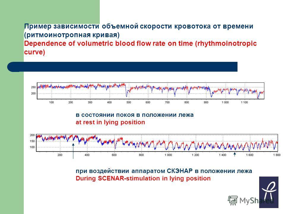 Пример зависимости объемной скорости кровотока от времени (ритмоинотропная кривая) Dependence of volumetric blood flow rate on time (rhythmoinotropic curve) в состоянии покоя в положении лежа at rest in lying position при воздействии аппаратом СКЭНАР