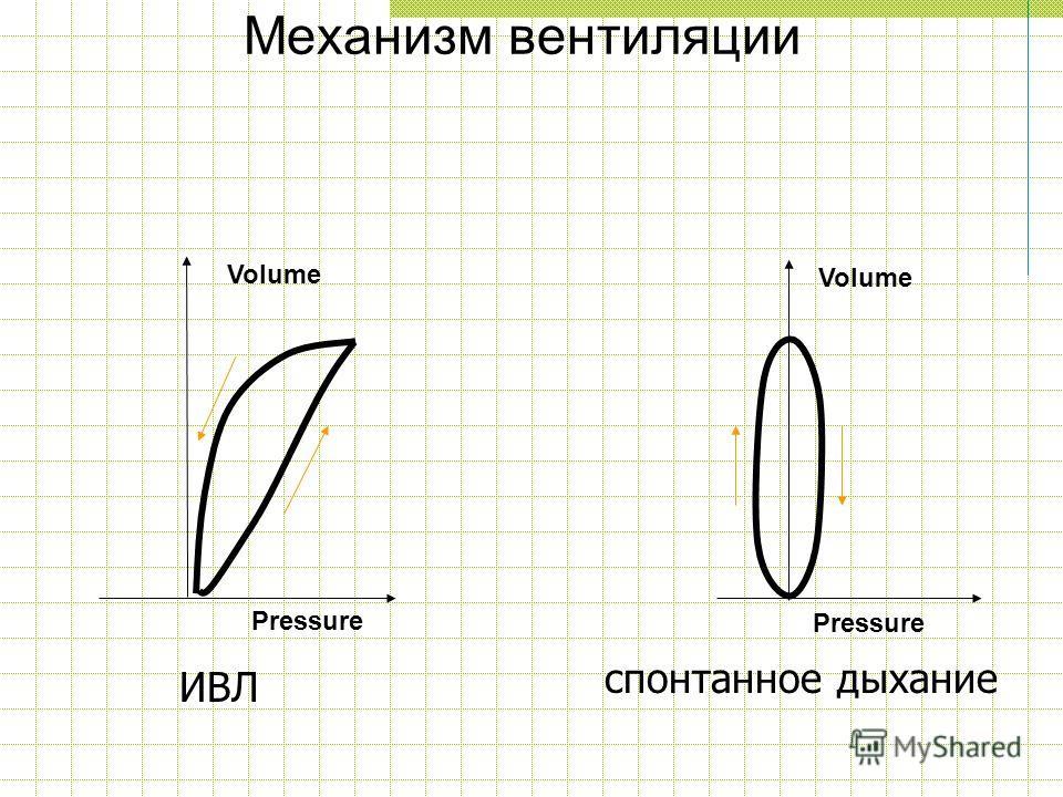 Механизм вентиляции спонтанное дыхание ИВЛ Volume Pressure Volume Pressure