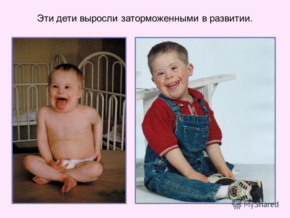 Эти дети выросли заторможенными в развитии.