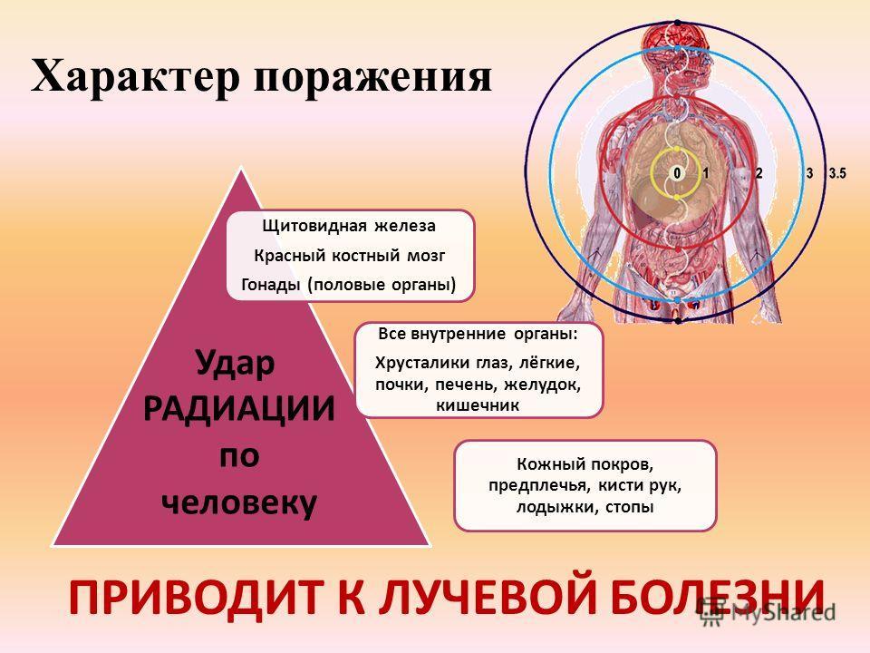 Характер поражения Щитовидная железа Красный костный мозг Гонады (половые органы) Все внутренние органы: Хрусталики глаз, лёгкие, почки, печень, желудок, кишечник Кожный покров, предплечья, кисти рук, лодыжки, стопы Удар РАДИАЦИИ по человеку ПРИВОДИТ