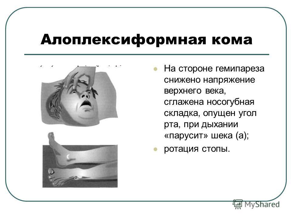 Алоплексиформная кома На стороне гемипареза снижено напряжение верхнего века, сглажена носогубная складка, опущен угол рта, при дыхании «парусит» шека (а); ротация стопы.