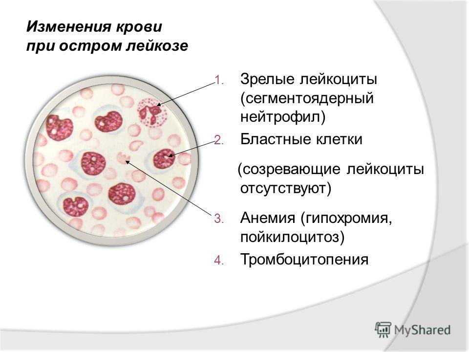 1. Зрелые лейкоциты (сегментоядерный нейтрофил) 2. Бластные клетки (созревающие лейкоциты отсутствуют) 3. Анемия (гипохромия, пойкилоцитоз) 4. Тромбоцитопения Изменения крови при остром лейкозе