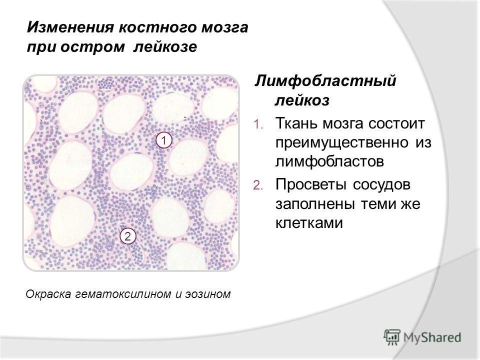Лимфобластный лейкоз 1. Ткань мозга состоит преимущественно из лимфобластов 2. Просветы сосудов заполнены теми же клетками Изменения костного мозга при остром лейкозе 1 2 Окраска гематоксилином и эозином